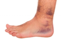 Different Types of Ankle Sprains