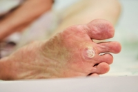 Are Plantar Warts Contagious?